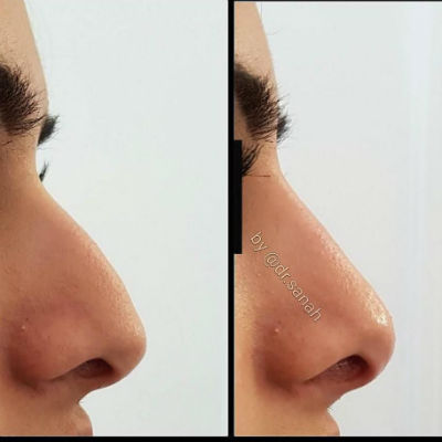 Non surgical nose job/Rhinoplasty